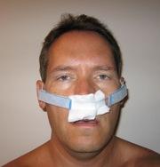 Sinus_surgery_001_2